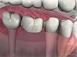 Implant Supported Fixed Bridgework