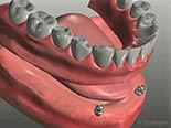Dental Implant-Stabilized Removable Dentures