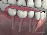 Common Dental Implant Applications