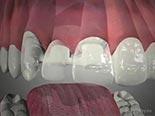 All-Ceramic Bridges