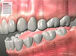 Guidelines Following Dental Implant Surgery